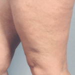 treatment of thigh threadveins scotland