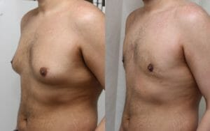 Male breast reduction Edinburgh Scotland